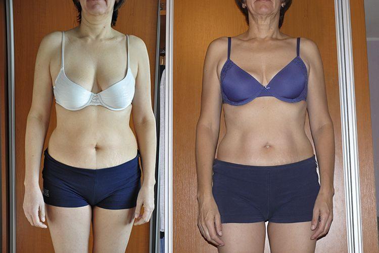 Výsledok detoxikácie │ For a Healthy Life